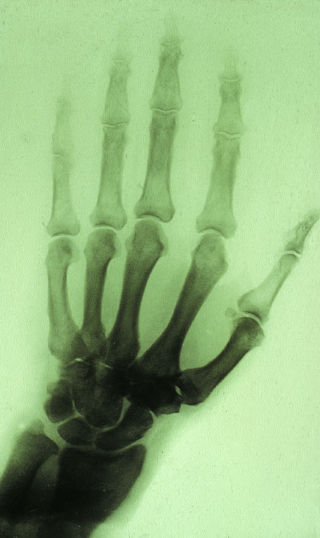 X-ray of Lord Lister's hand