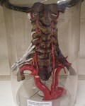 Aortic Arch