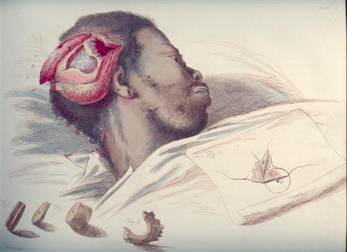 Charles Bell, 'Illustrations of the great operations of surgery,' 1821