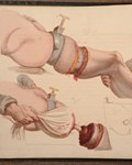 Charles Bell, 'Illustrations of the great operations of surgery, '1821