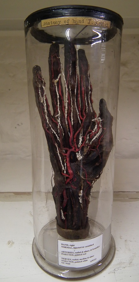 Dissected Hand