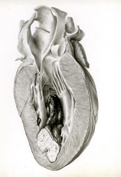 Watercolour showing the effects of a myocardial infarction